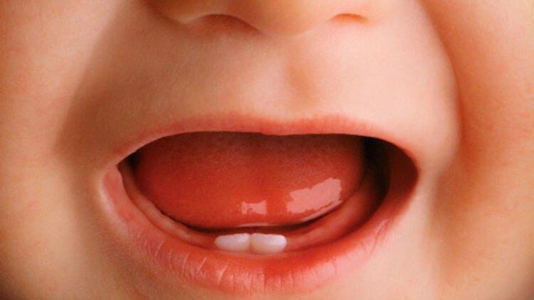 İlk Diş Heyecanı