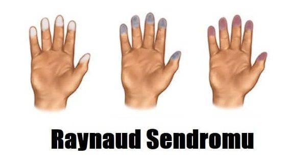Raynaud Sendromu Nedir